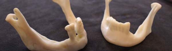 3D-print-cheliust