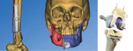 3d-model-na-konkreten-pacient